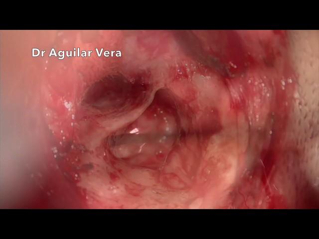 OSICULOPLASTIA - TORP TRAS COLESTEATOMA