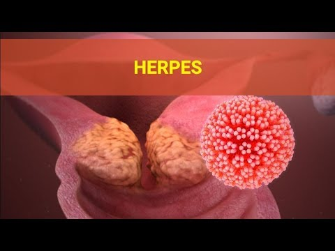 Herpes Symptoms – Causes Symptoms and Pictures of HSV Herpes Cold Sores in Men women