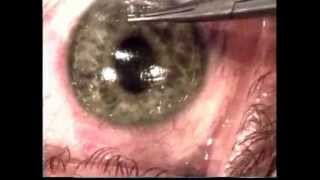 Lasik Flap Wrinkles - corrected   (Graphic Content - viewer discretion advised)
