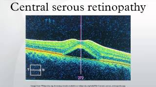 Central serous retinopathy
