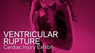 Ventricular Rupture - Heart Animation