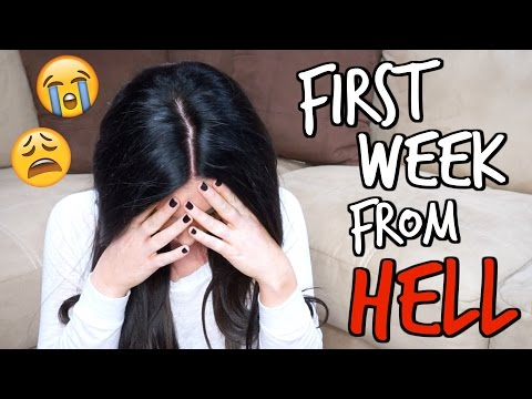 Smile Direct Club | The First Week FROM HELL