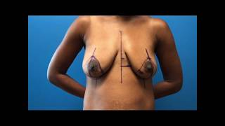 Bilateral Breast Augmentation with Silicone Implants by Dr.Okoro