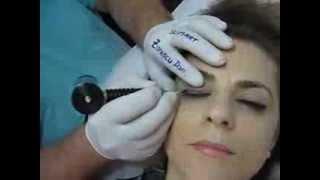 Tatuaj ochi make up artist Zarescu Dan Clinica Slimart micropigmentare contur ochi tatuaj