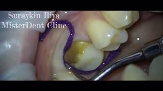 Архивные записи , стоматология , стоматолог Фрязино , стоматолог Сурайкин , препарирование зубов