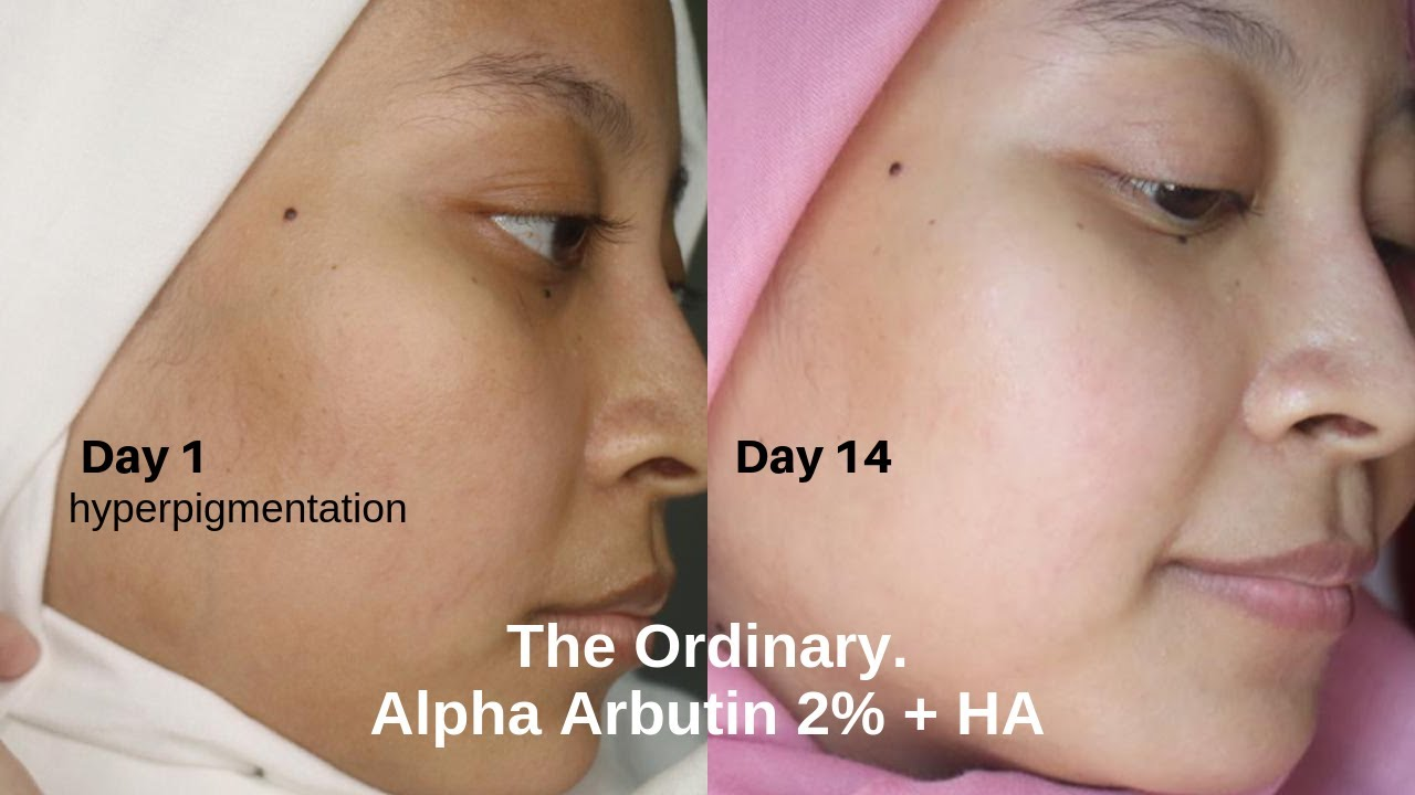 The Ordinary Alpha Arbutin 2 Weeks Trial Youtube
