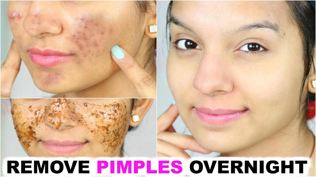 Get rid of pimples overnight with honey