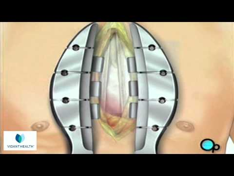 Coronary Artery Bypass Graft (CABG off-pump) Vidant PreOp® Patient Education