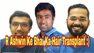 Jabardast Hair Transplant Re-Surgery Result - 10 Rs Per Graft Hair Transplant