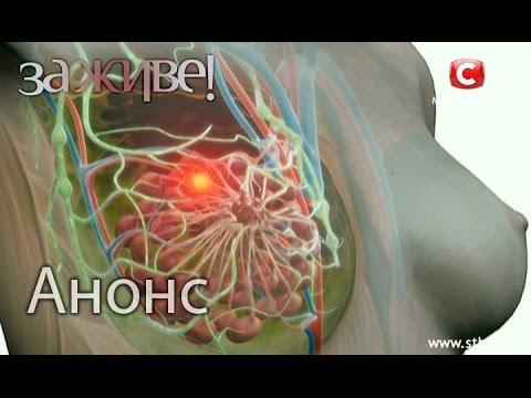 Рак груди – признаки, симптомы, стадии и лечение рака груди