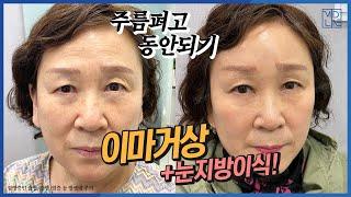 [미드라인]내시경이마거상, 눈꺼풀지방이식 1차 1.5개…