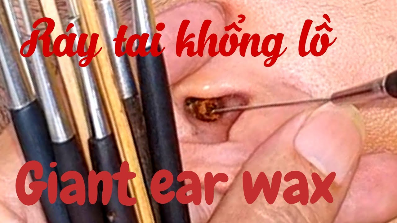 Giant Ear Wax    How to clean the ears of Vietnamese people