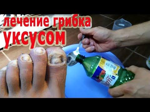 ★ Лечение грибка ногтей. Уксусные ванночки.