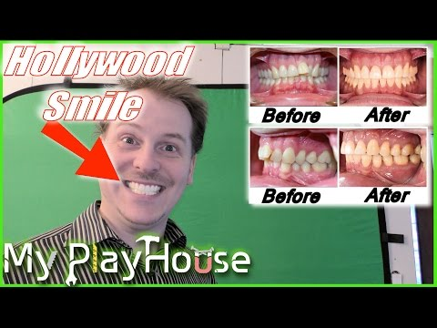 Off with Braces! and HELLO HOLLYWOOD GRILLS - 419