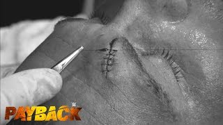 Dolph Ziggler receives stitches after his match at WWE Payback: WWE.com Exclusive, May 17, 2015