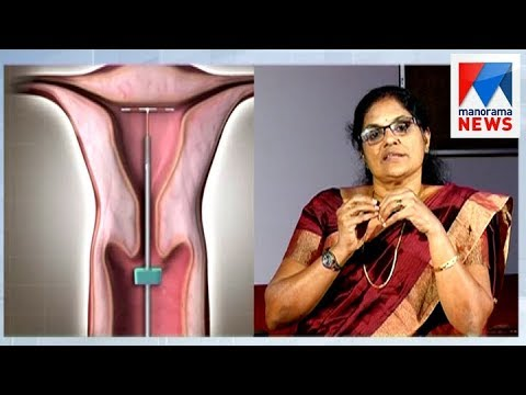 Healthy and effective contraception methods   | Manorama News