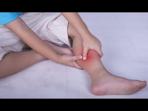 ☆Почти каждую ночь ногу сводила СУДОРОГА НОГ. Сок чистотела и ...