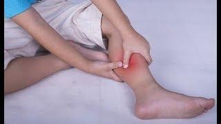 ★Почти каждую ночь ногу сводила СУДОРОГА НОГ. Сок чистотела и вазелин устранили проблему за месяц.