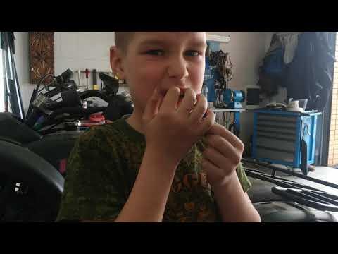Сначала зассал а потом вырвал зуб на камеру в гараже.