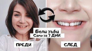 ИЗБЕЛИХ си зъбите вкъщи | Само за 7 ДНИ