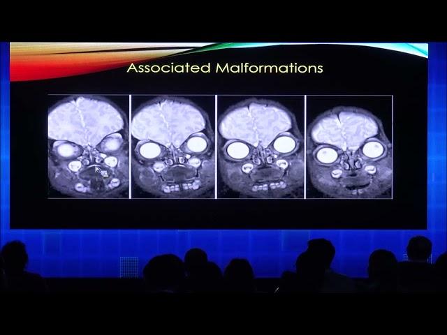 RM fetal en la patología de cabeza y cuello. Camilo Jaimes Cobos