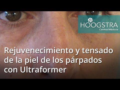 Rejuvenecimiento y tensado de la piel de los párpados con Ultraformer (17121)
