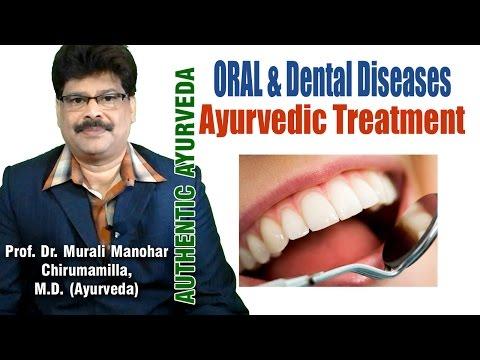 Oral and Dental Problems   Ayurvedic Treatment   Prof. Dr. Murali Manohar Chirumamilla, M.D.