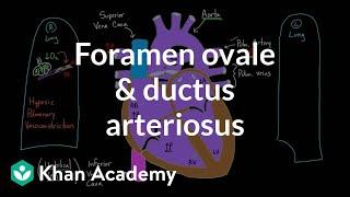 Foramen Ovale and Ductus Arteriosus