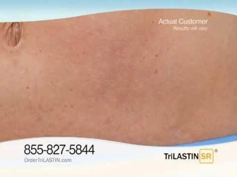 Stretch Marks Cream Trilastin Sr Tv Commercial 2011 Hd Youtube