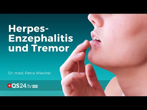 Herpes encephalitis and tremor