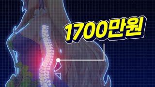 척추 수술 1700만원!!!