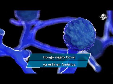 Detectan primer caso de hongo negro en paciente con Covid-19 en Uruguay