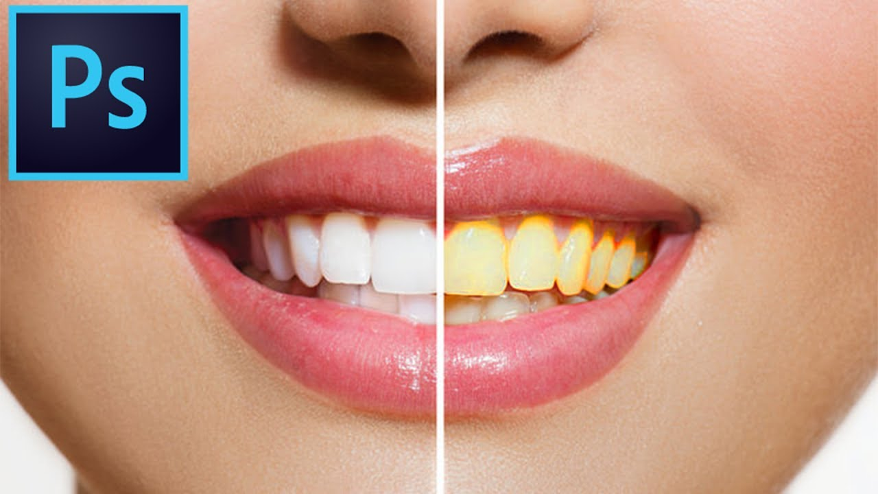 # Whiten Teeth Adobe Photoshop Elements