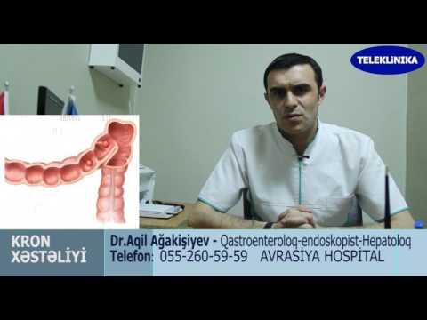 Diqqet!. Kron Xesteliyi. Dr Ağakişiyev. Qastroenteroloq-hepatoloq