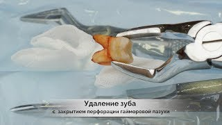 Сложное удаление зуба с ушиванием соустья с гайморовой пазухой