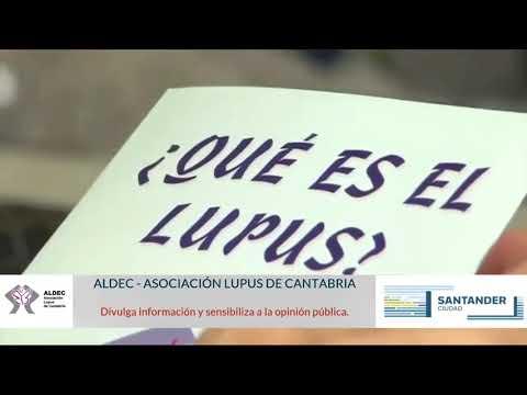 XXII Jornada de Lupus - Aldec Cantabria