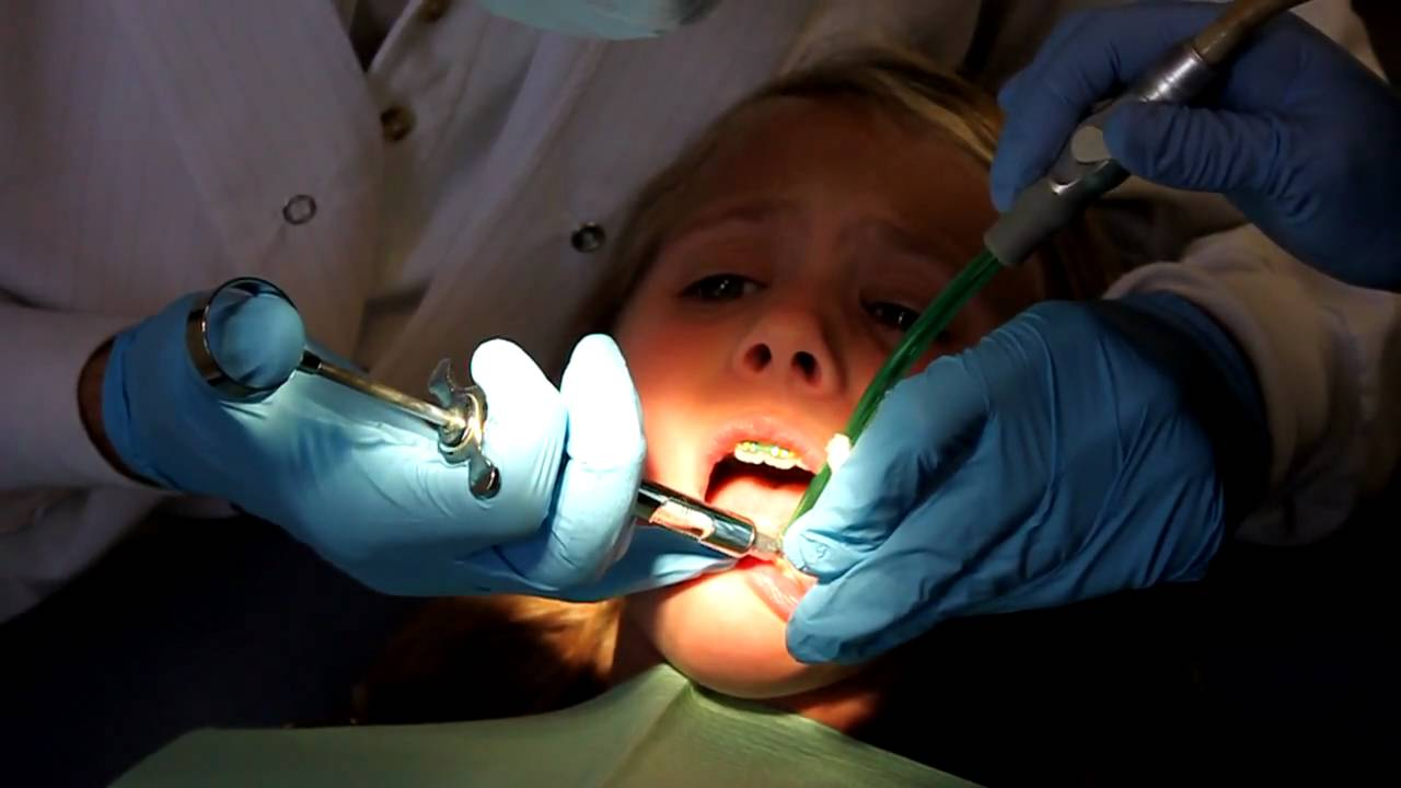 Elisa S Second Dental Injection For A Cavity And Tooth