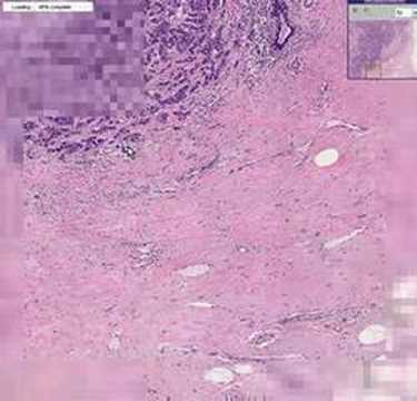 Histopathology Breast --Ductal carcinoma