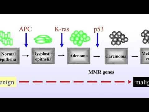 Cellular And Genetic Changes In Colorectal Cancer
