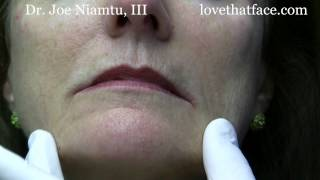 Botox Injection to DAO (corner of mouth) by Dr. Joe Niamtu, III