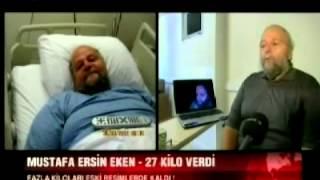 73 Yaşında Robotik Obezite Ameliyatı (Bugün TV) Doç.Dr.Yunus Yavuz
