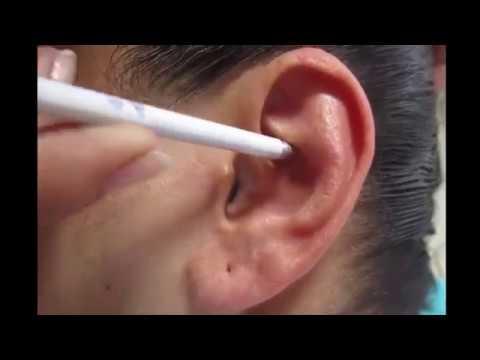 masaje de próstata en florencia youtube