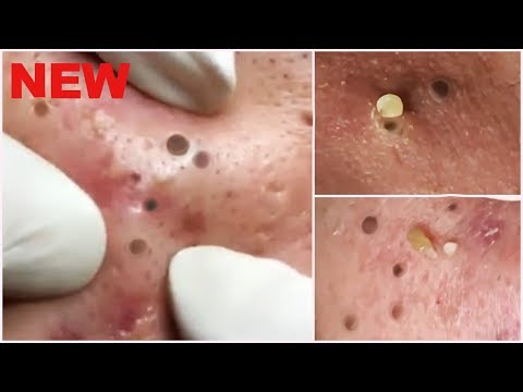 Deep Blackheads Removal from Cheeks and Nose - Best Pimple Popping Videos