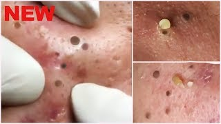 Facial blackheads Best for