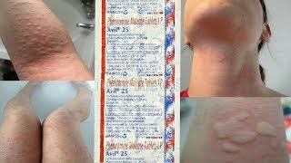 Avil - 25/50mg Tablets | Dadre-Chakte Ki Ekmatra Dwaa | Cheap & Best For Allergy, Eczema, Scabies !!