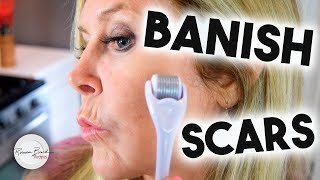 Banish Acne Scars from your Face | New Technology to Remove Scars