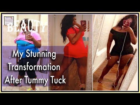 tummy-tuck-surgery-by-dr.-cortes-plastic-surgeon-|-before-and-after-journey