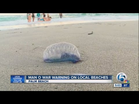 5 people stung by man-o-war at Phil Foster Park