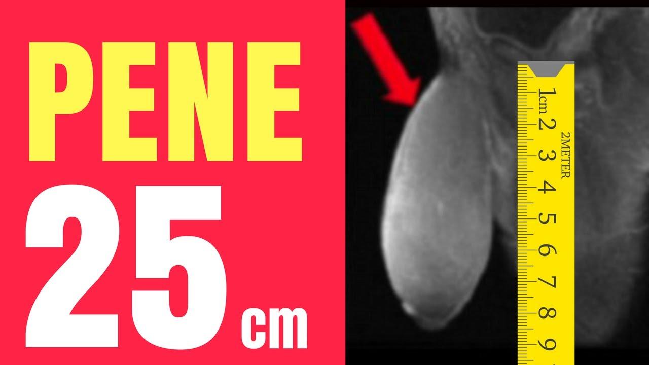attacchi del pene 25 cm)