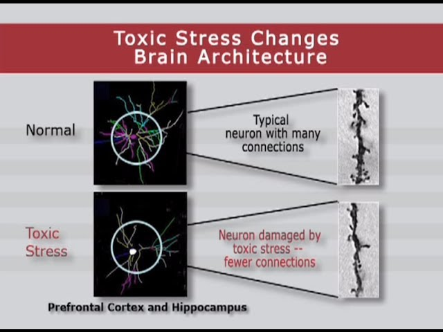 How toxic stress affects us and what we can do about it, Harvard University